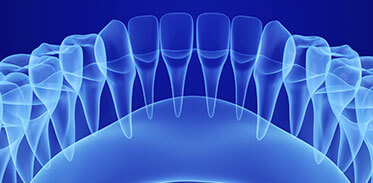 Dental Implants X-Ray